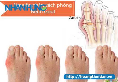 Dấu hiệu bệnh Gout, cách nhận biết