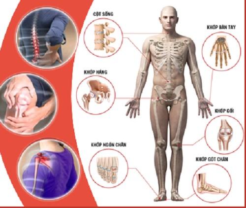Bệnh cơ xương khớp - Nguyên nhân hàng đầu...
