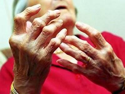 Bệnh gout ở người cao tuổi