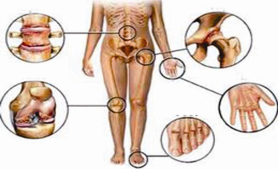 Bệnh gout nguyên nhân và biểu hiện