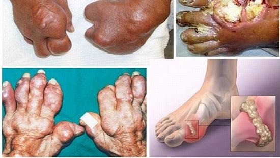Bệnh gút và cách chữa trị