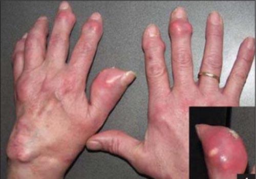 Bệnh gout và cách điều trị