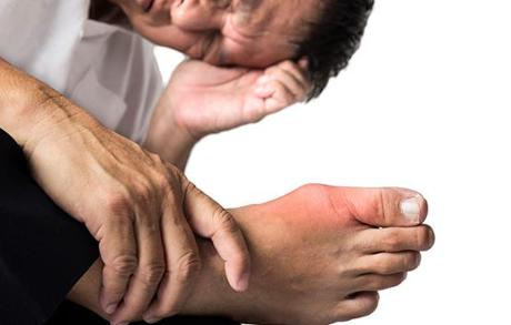 Bệnh gout nặng đến mấy áp dụng bài thuốc...