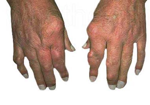 Bệnh gút triệu chứng của gout mạn tính