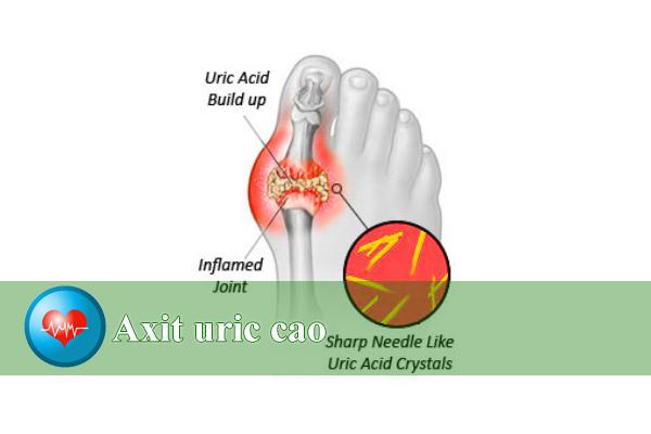Bệnh gút và tăng acid uric trong máu