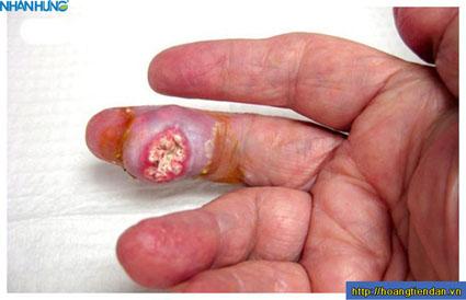 Các biến chứng của bệnh gout khiến ai cũng...