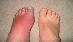 Các biểu hiện bị bệnh gout thường gặp