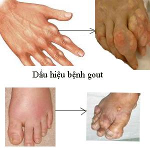 Nhận biết bệnh gout qua các triệu chứng đau,...
