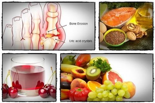 Cách ăn uống dự phòng bệnh gút