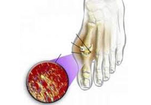 Đại cương bệnh gout