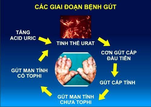 Gout mạn tính và thuốc điều trị
