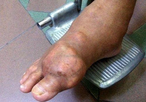 Hỏng hết khớp chân tay vì bệnh gút