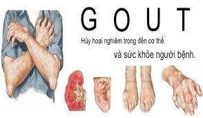 Bệnh lý đi kèm với bệnh gout nhất