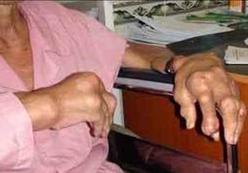 Những bệnh dễ nhầm lẫn với Gout
