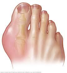 Những biểu hiện của bệnh gout