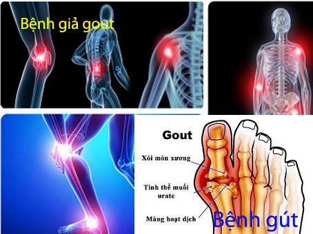 Triệu chứng bệnh gút và bệnh giả gout là...