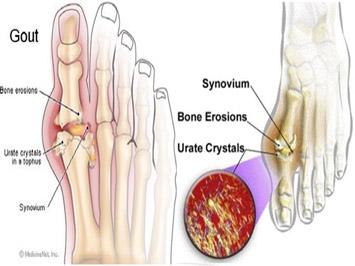 Tham khảo các phòng bệnh gout hiệu quả