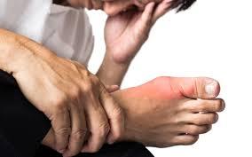 Nguyên nhân và biểu hiện của bệnh gout